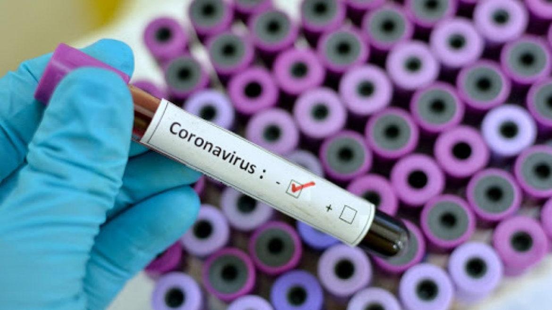 risultato - tampone-negativo-coronavirus